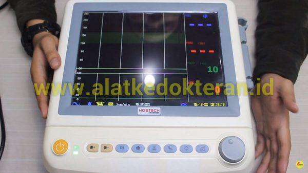"""""""Fetal monitor  adalah alat yang digunakan untuk memonitoring keadaan janin dalam kandungan dengan mencatat setiap perubahan denyut jantung janin."""""""