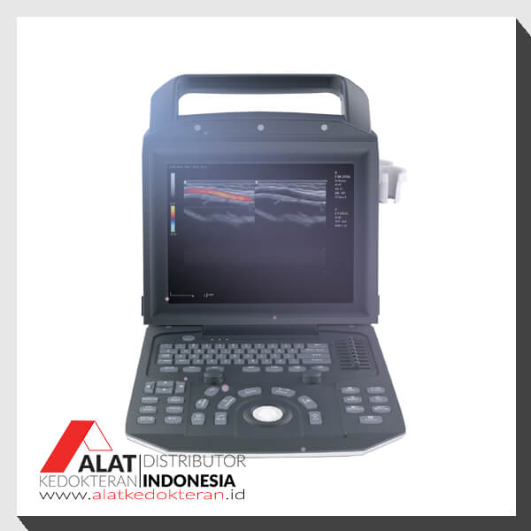 Jual USG Color Doppler 2D Portable Zoncare-M5